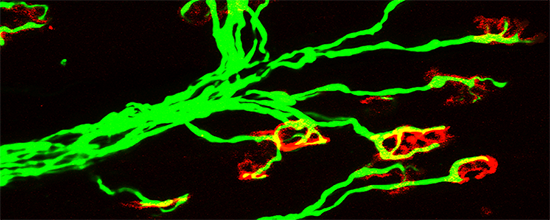 Investigating Motor Neuron Degeneration