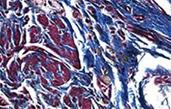Nanomolecules