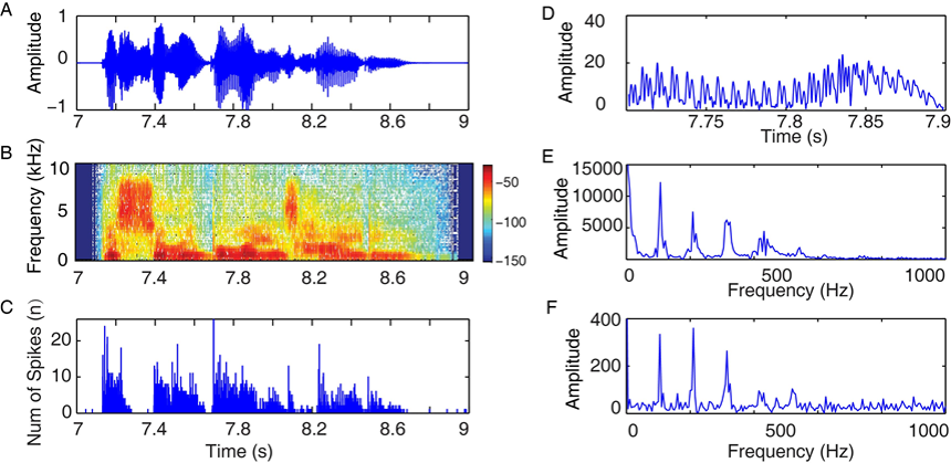 Phase Processing of Complex Sounds in the Auditory System - Research